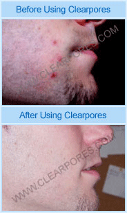 Clearpores Proof